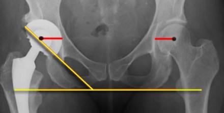 Стоимость подбора готового искусственного протеза