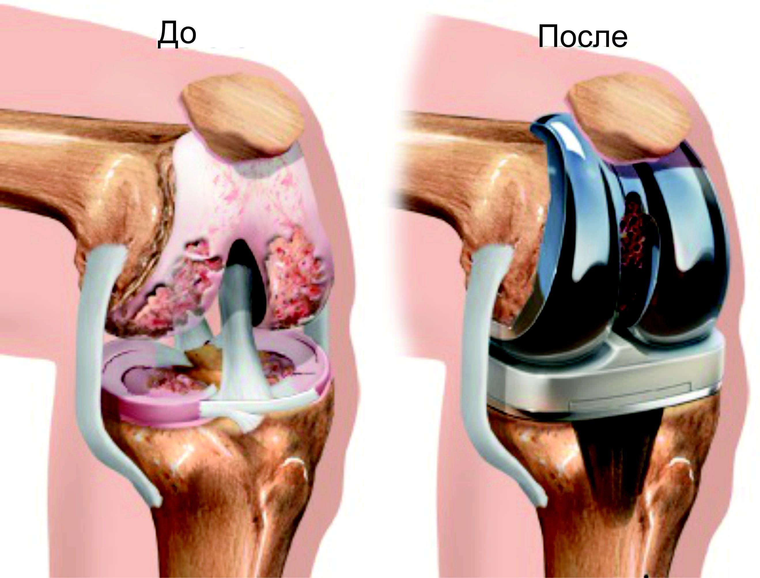 Стоимость операции по протезированию суставов