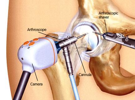 Артроскопия тазобедренного сустава отзывы тугоподвижность тазобедренных суставов у младенцев