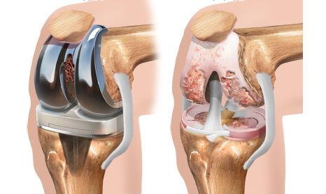 Вторичная протезирование коленного сустава показания мрт коленного сустава