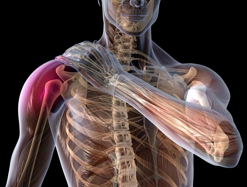 Ротаторная манжета плечевого сустава растяжение растежения сустава кисти