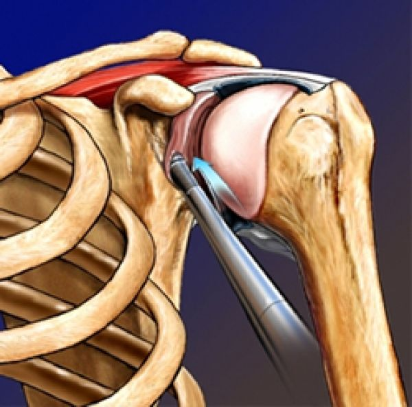 Эндопротезирование плечевого сустава в москве цито видео разрушение костных тканей суставов