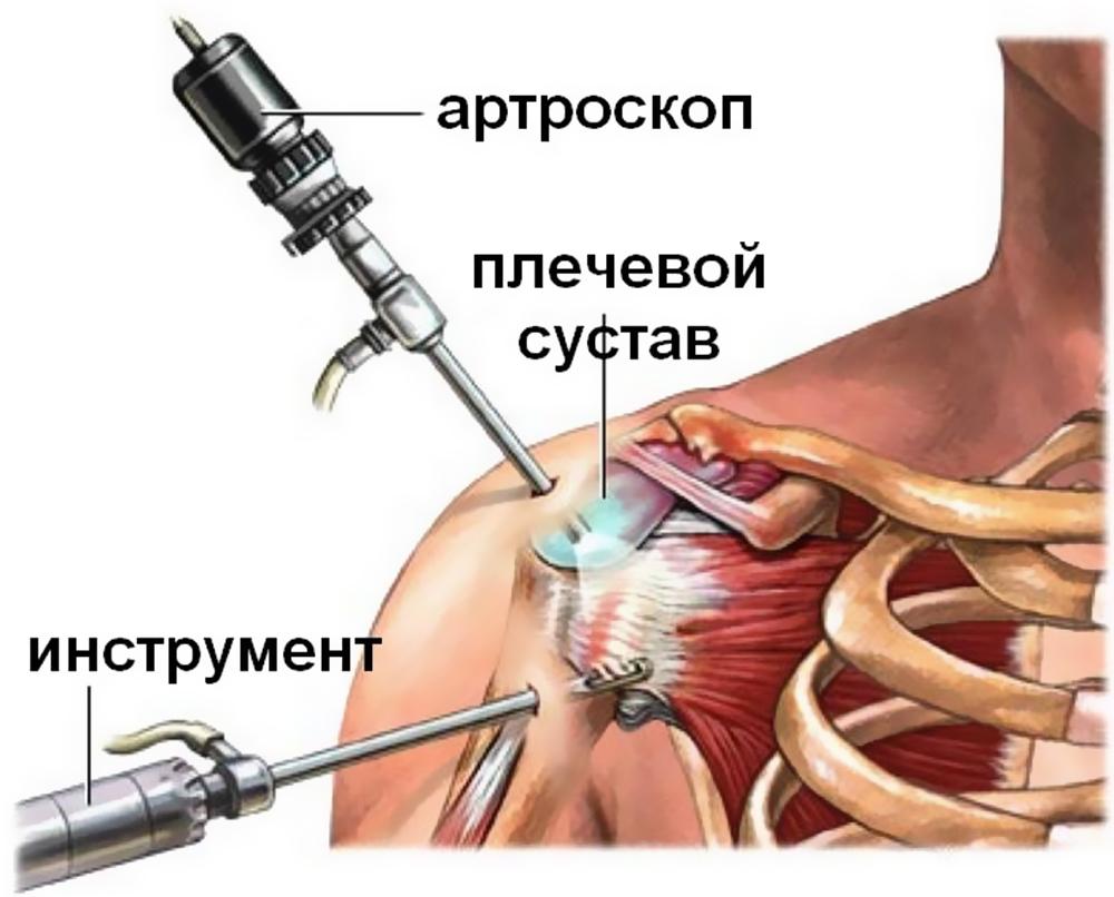 Артроскопическая субакромиальная декомпрессия плечевого сустава обладает способностью оказывать противовоспалительное действие успокаивать боль суставах