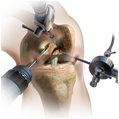 Артроскопический дебридмент тазобедренного сустава цена замена суставов в рязани