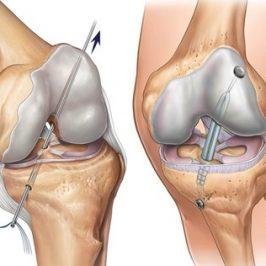 Пластика связок коленного сустава цена височно-нижнечелюстной сустав анкилоз
