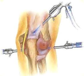 Магнитолазер на локтевой сустав гипермобильный суставный синдром