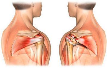 таблетки от боли в спине в суставах обезболивающие