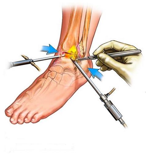 артроскопия остеофиты тазобедренного сустава