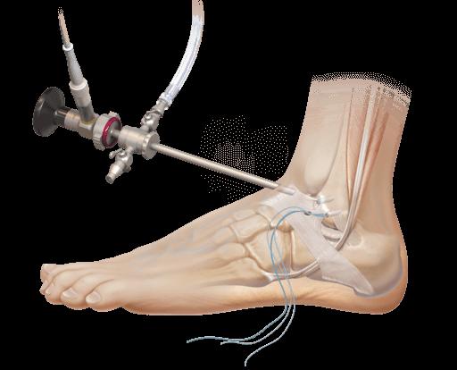 Реабилитация после артроскопии голеностопного сустава что такое лазерное лечение суставов