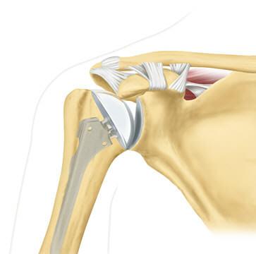 препарат артро при коксартроз тазобедренного сустава